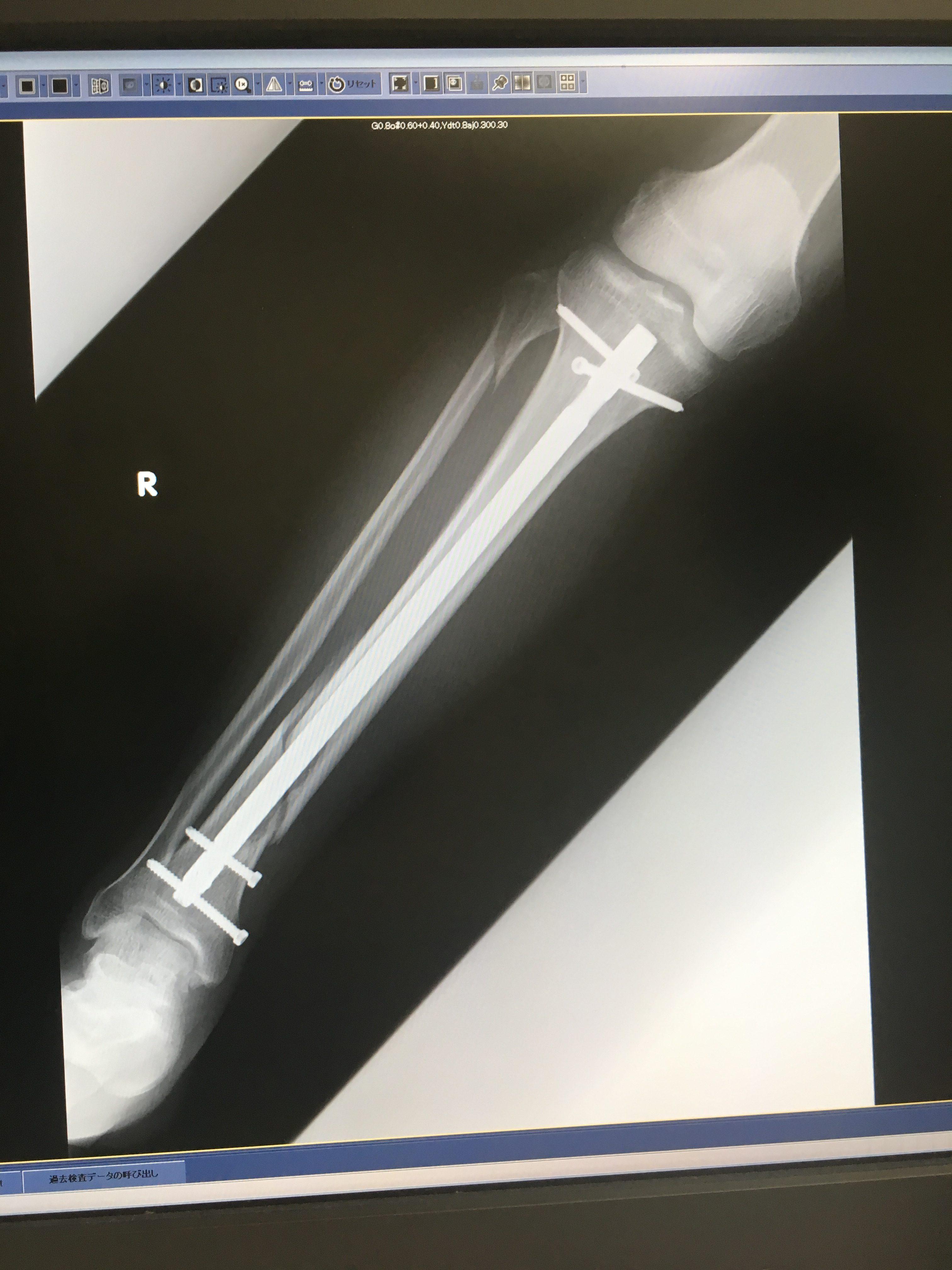骨折手術その翌日
